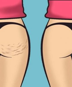 end-of-cellulite